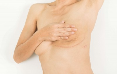 Juliet's story: No reconstruction is a post-mastectomy option